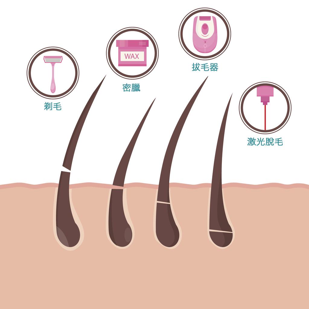 ازالة الشعر نهائيا – جميع طرق ازالة الشعر