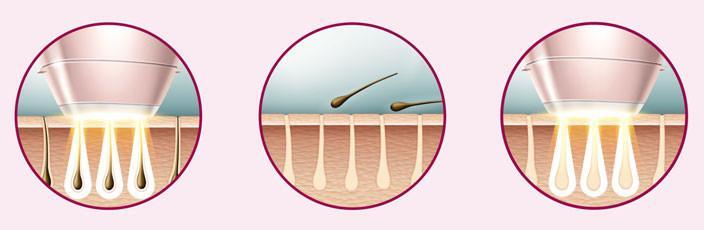 ازالة الشعر بالليزر من المناطق الحساسة البكيني و الابط جميلة دليل الليزر المنزلي
