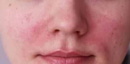 اسباب التهاب البشرة الدهنية