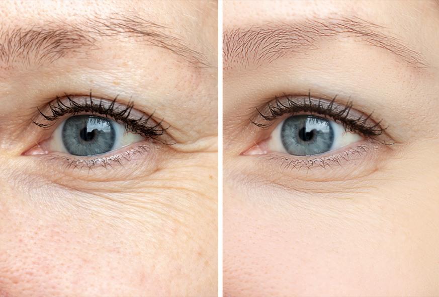 تجاعيد العين المبكرة في سن صغير | عوامل ظهورها و علاجها
