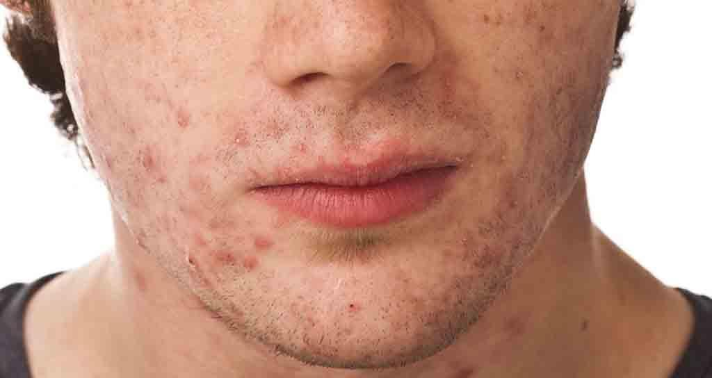 acne-treat-for-men.jpg