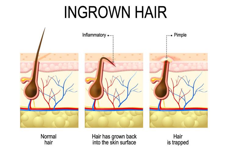 تقنية الليزر لازالة الشعر