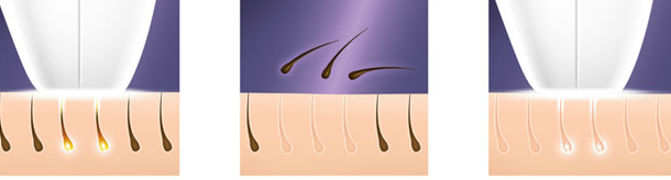كم يكلف ازالة شعر الوجه بالليزر ؟