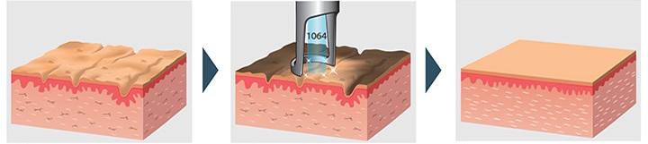 الليزر الكربوني للوجه