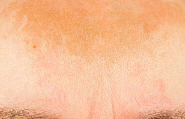 ضرر تصبغات الجلد