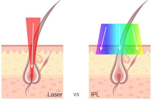 الفرق بين الليزر و ipl لازالة الشعر
