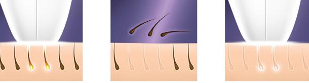 براون جهاز ليزر Silk-expert 3 ipl
