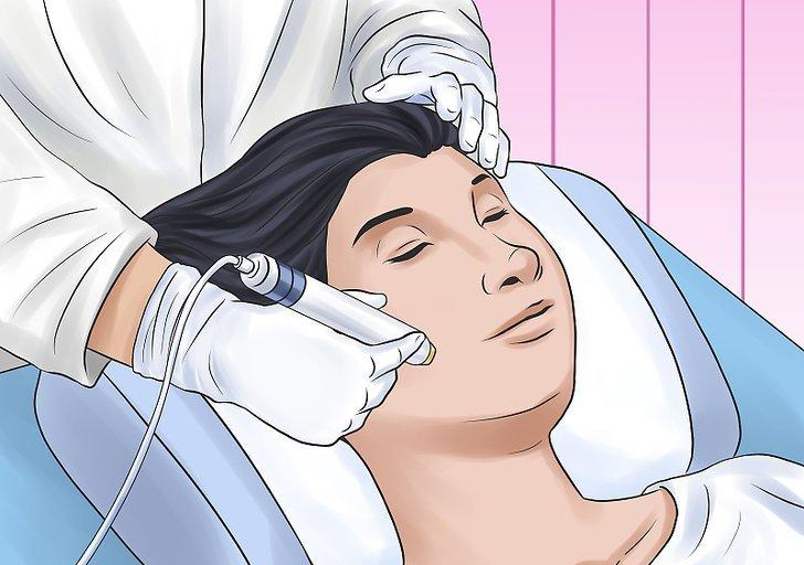 جهاز ليزر سبكترا لتشقير الوجه و الشعر الوبري