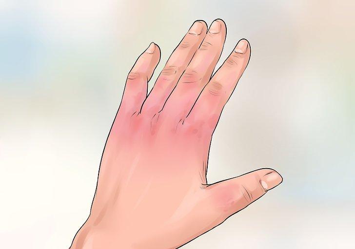 خطورة تهيج و التهاب الجلد