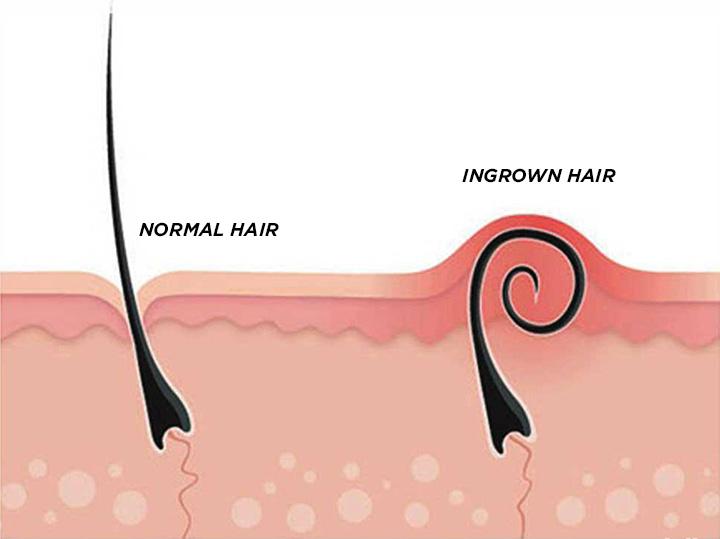 مشكلة نمو الشعر تحت الجلد