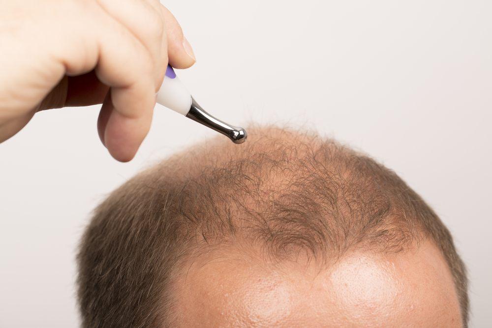 ماهي اضرار فيلر الشعر و مخاطره ؟